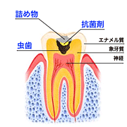 虫歯治療の図