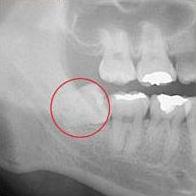 水平埋伏歯症例