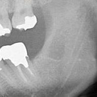 予防的抜歯症例