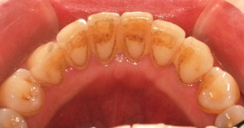 歯垢・歯石