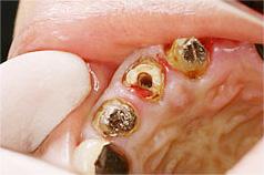 虫歯が過度に進行している図